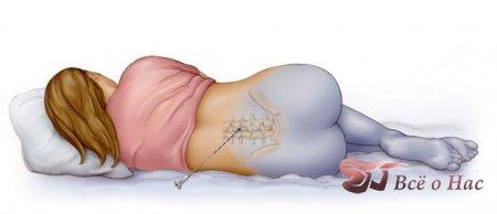 Применение эпидуральной анестезии в родах